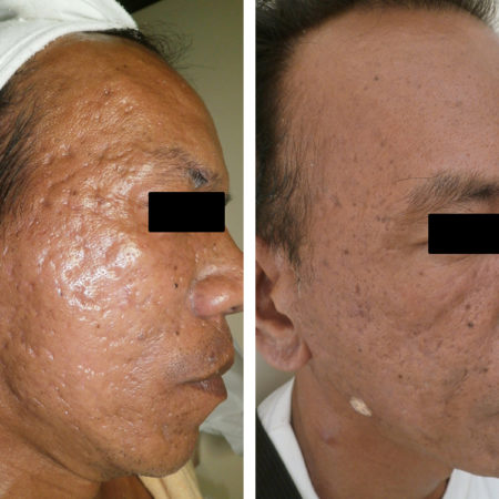 DS RF acne scars