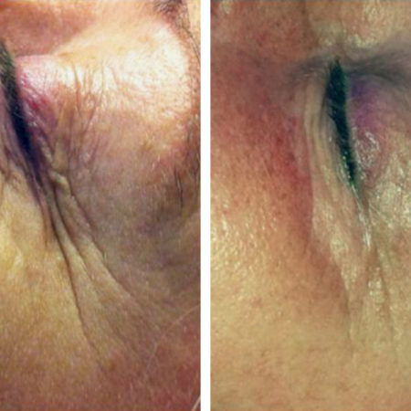 ds 1 treatment wrinkles