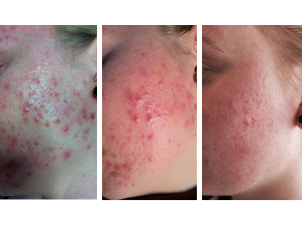 rf acne 10 treatments