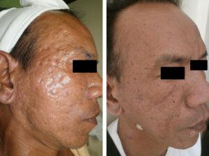 DS-RF-acne-scars.jpg