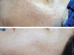 rf-hyperpigmentation-1-treatment.jpg