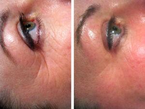 rf-wrinkles-1-treatment.jpg